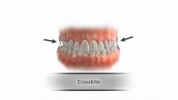 Crossbite- Dr. Amin Shirvani